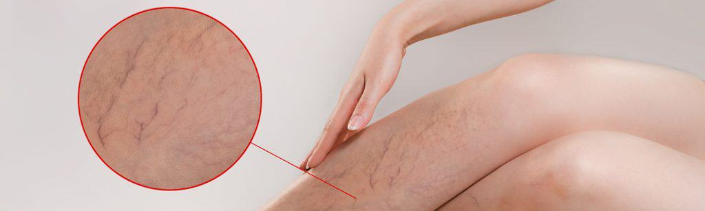 Woman's legs with varicose veings and close up varicose vein