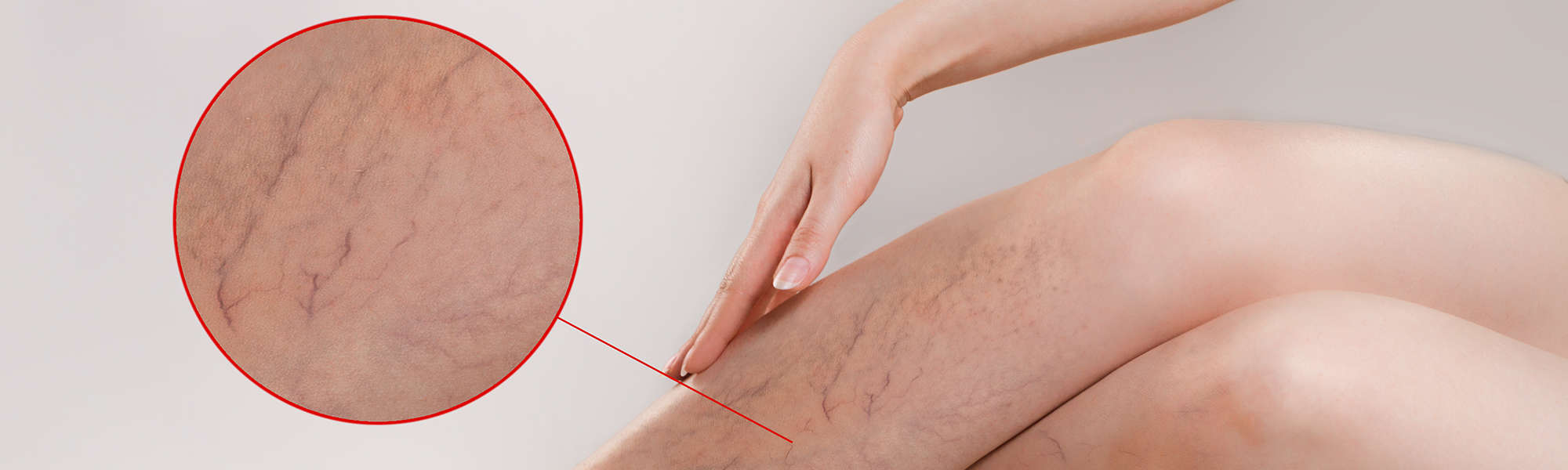 What Are Varicose Veins and How Can I Treat Them at Home?