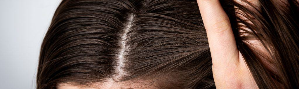 Close up of woman running hands through hair that needs dandruff treatment and remedy