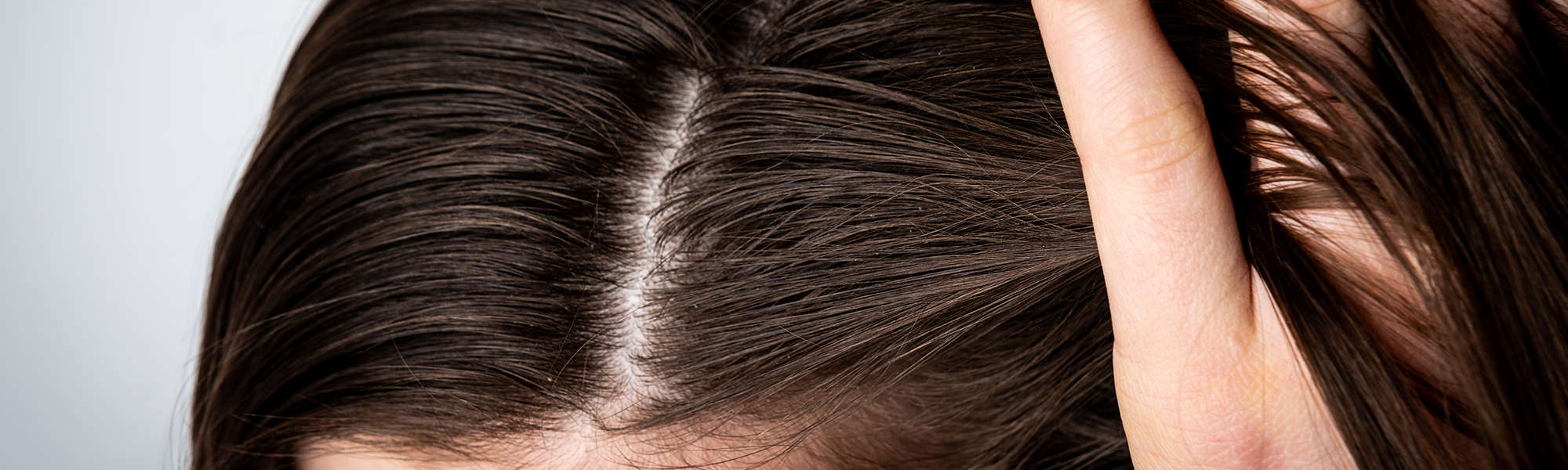 Natural Remedies for Dandruff – Combating the Common Condition